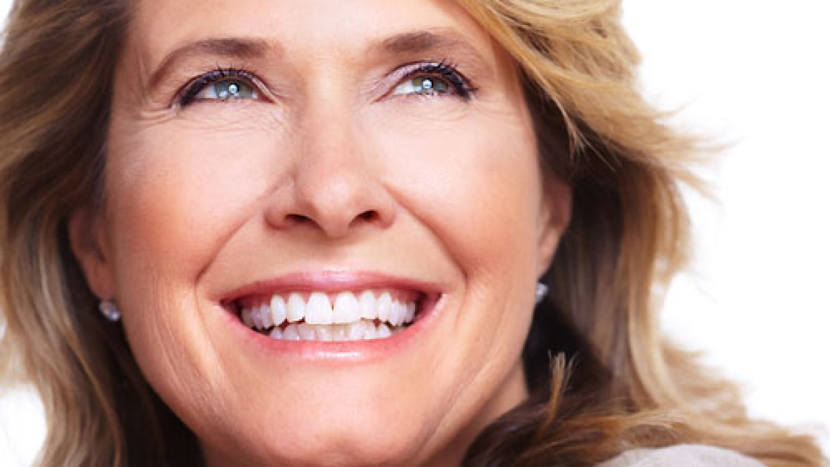veneers_1 __Sunrise Dental | Chapel Hill | Durham | Raleigh | Cary, NC