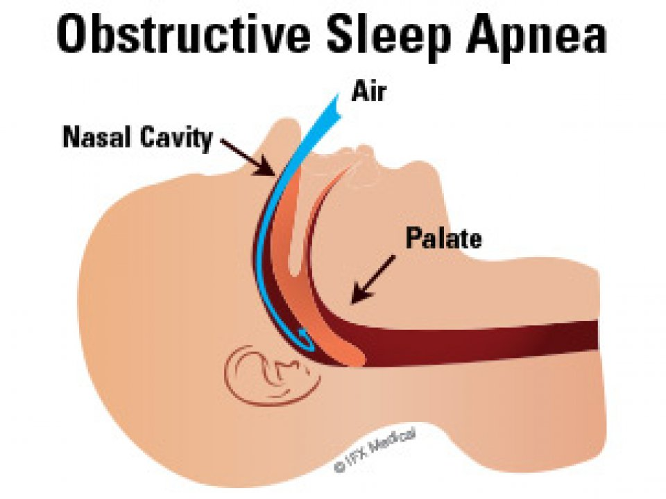Sleep Apnea Treatment __Sunrise Dental | Chapel Hill | Durham | Raleigh | Cary, NC